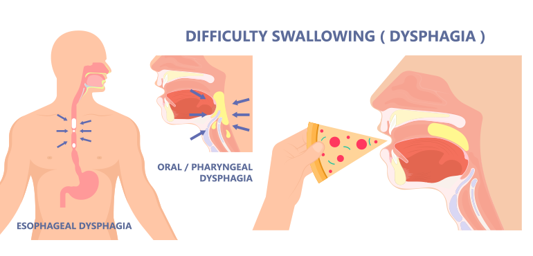 DIFFICULTY IN SWALLOWING (DYSPHAGIA)